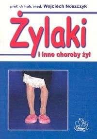 Okładka książki Żylaki i inne choroby żył