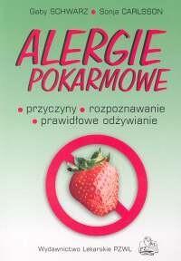 Okładka książki Alergie pokarmowe