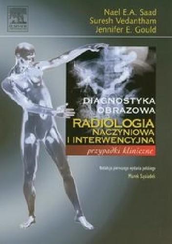 Okładka książki Diagnostyka obrazowa. Radiologia naczyniowa i interwencyjna