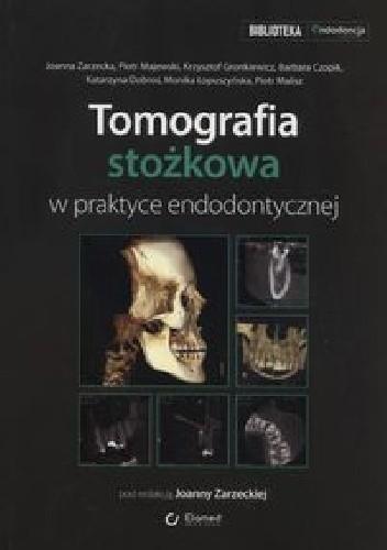 Okładka książki Tomografia stożkowa w praktyce endodontycznej