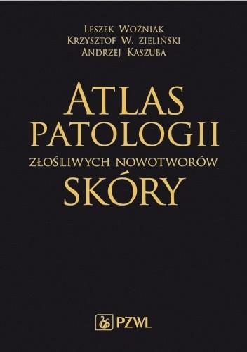 Okładka książki Atlas patologii złośliwych nowotworów skóry