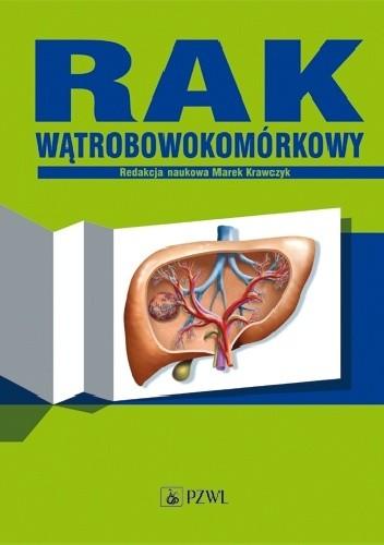 Okładka książki Rak wątrobowokomórkowy