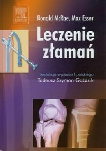 Okładka książki Leczenie złamań