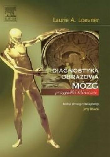 Okładka książki Diagnostyka obrazowa. Mózg. Przypadki kliniczne
