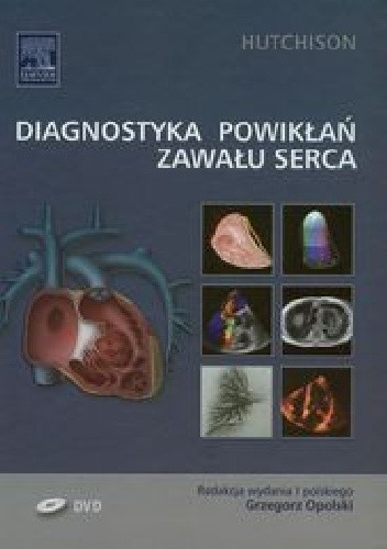 Okładka książki Diagnostyka powikłań zawału serca