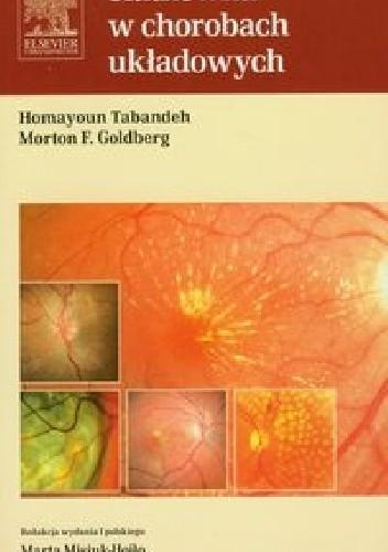 Okładka książki Siatkówka w chorobach układowych