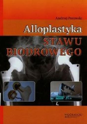 Okładka książki Alloplastyka stawu biodrowego