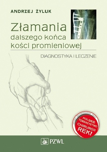 Okładka książki Złamania dalszego końca kości promieniowej. Diagnostyka i leczenie