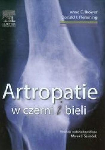 Okładka książki Artropatie w czerni i bieli