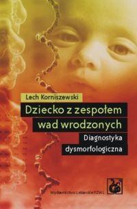 Okładka książki Dziecko z zespołem wad wrodzonych Diagnostyka dysmorfologiczna