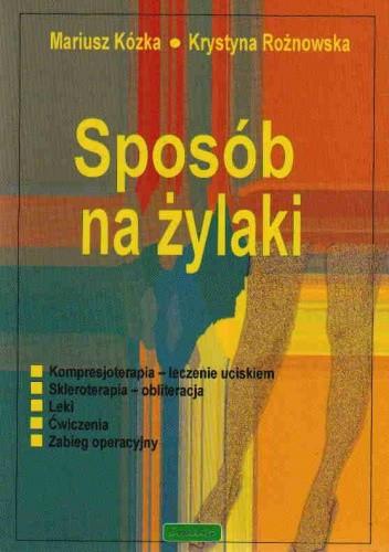 Okładka książki Sposób na żylaki