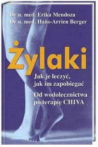 Okładka książki Żylaki