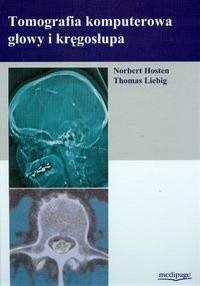 Okładka książki Tomografia Komputerowa Głowy I Kręgosłupa