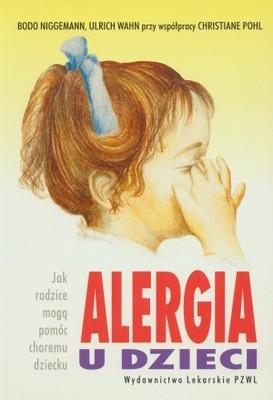 Okładka książki Alergia u dzieci