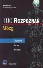 Okładka książki 100 rozpoznań - mózg