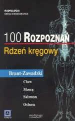 Okładka książki 100 rozpoznań - rdzeń kręgowy