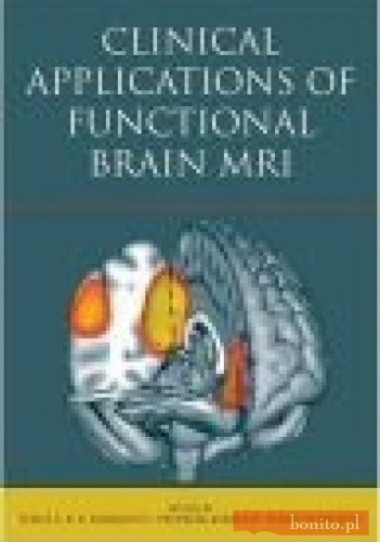 Okładka książki Clinical Applications of Functional Brain MRI