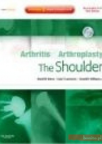 Okładka książki Arthritis and Arthroplasty The Shoulder