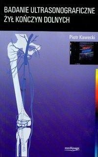 Okładka książki Badanie ultrasonograficzne żył kończyn dolnych