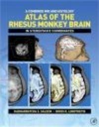 Okładka książki Combined MRI && Histology Atlas of the Rhesus Monkey Brain