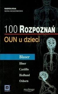 Okładka książki 100 rozpoznań. OUN u dzieci.