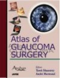 Okładka książki Atlas of Glaucoma Surgery