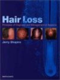 Okładka książki Hair Loss