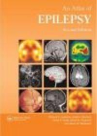 Okładka książki Atlas of Epilepsy