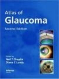 Okładka książki Atlas of Glaucoma