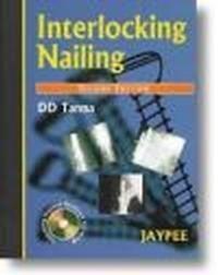 Okładka książki Interlocking Nailing 2E