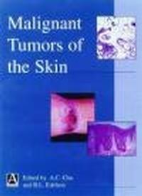 Okładka książki Malignant Tumors of Skin