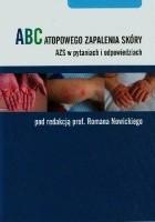 ABC Atopowego Zapalenia Skóry, AZS w pytaniach i odpowiedziach